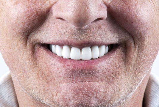 closeup of a person's smile